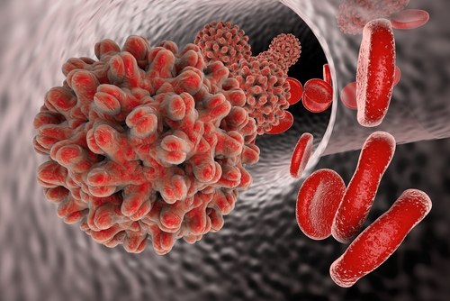 Hep B and ReFlections